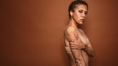 vitiligo, société, éducation, amaury watremez